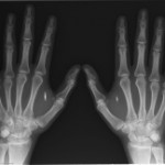 ID chip hand implants